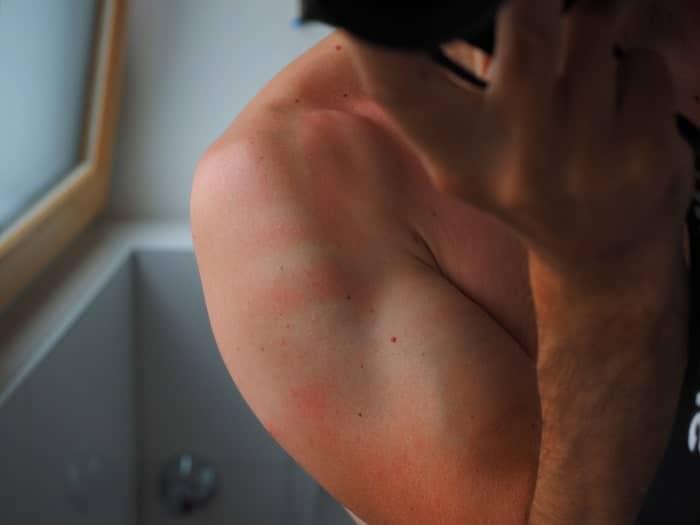 Le CBD pourraient faciliter la guérison de notre peau après un coup de soleil