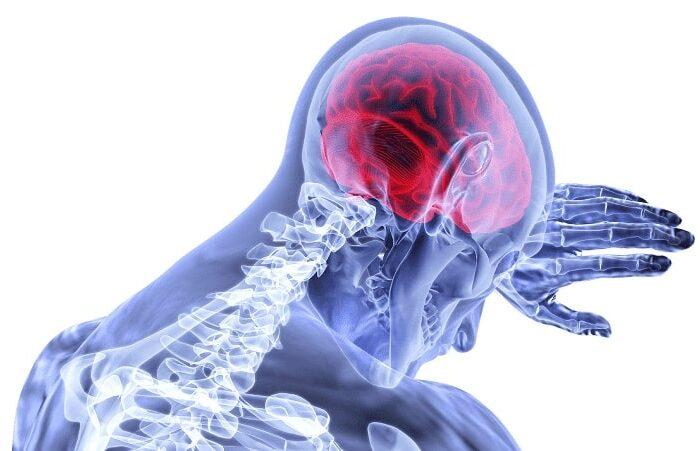 CBD et neuropathie : réduire les douleurs neurologies grâce au CBD