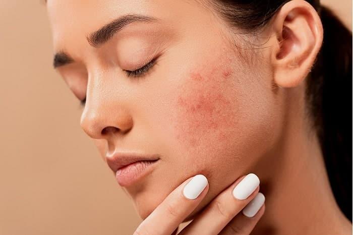eczema facial min